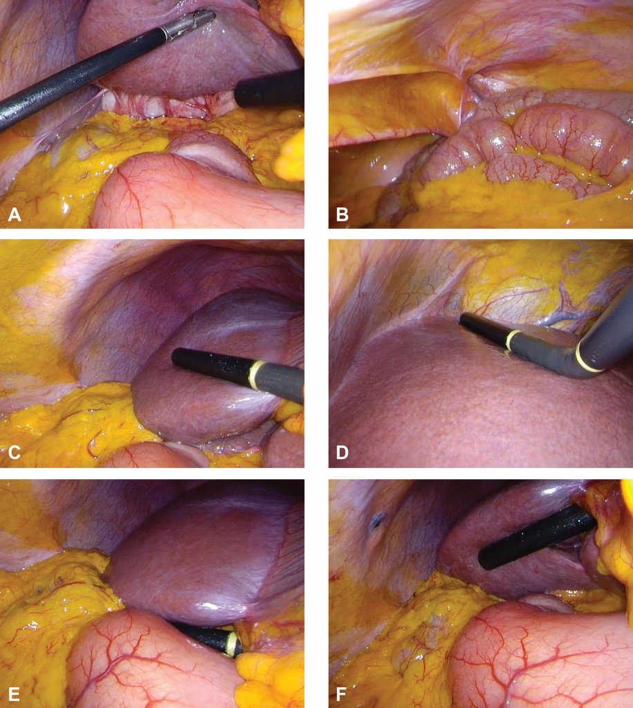 Staging laparoscopy. Begin with a full inspection of the peritoneal cavity lifting the left and right liver to view the underside (A) and paying particular attention to the peritoneum (B). Use laparoscopic ultrasound to orientate on the origin of the left and right portal vein branches and carefully visualise the parenchyma of the right lobe (C). Look on the left side of the falciform ligament and scan segments II and III. Place the probe on the hepatoduodenal ligament in the transverse plane to examine the portal pedicle (E). The probe can also be placed on the underside of any part of the liver and orientated anteriorly (F). Adhesions around the gallbladder can be seen as a result of recent acute cholecystitis.